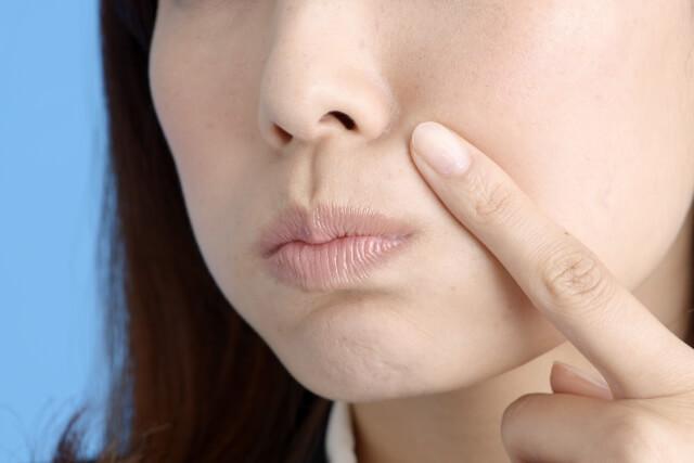 黒ずみ毛穴の対策と治療法